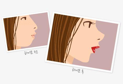 코 성형 전후
