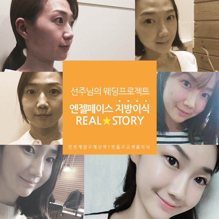 160519_웨딩성형리얼스토리변선주_title