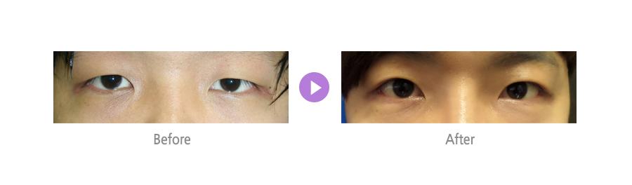 눈매교정01