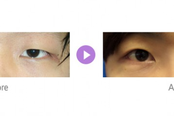 눈매교정01.jpg